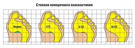 Йогатерапия про плоскостопии