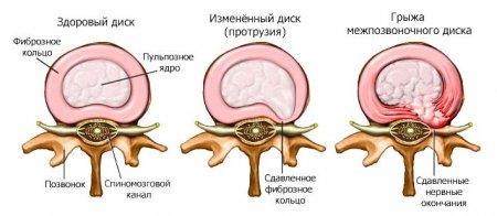 Хатха-йога: основы выздоровления при экструзии межпозвонкового диска